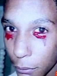 Un adolescent pleure des larmes de sang images-71